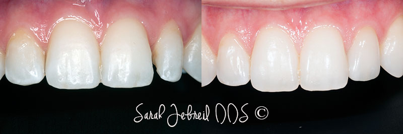 Newport-Beach-Veneers-1